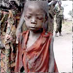Malnourished boy in Angola