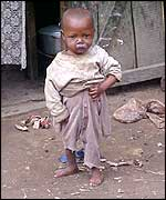Malnourished child in Madagascar