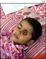Child with eye tumour   AP