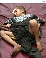 A young survivor of the bombing in hospital
