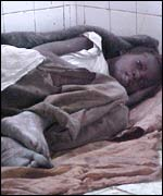 Malnourished girl in hospital, Angola