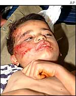 Wounded Palestinian boy