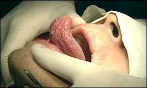 Tongue operation in China