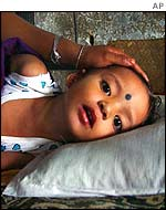 An Indian girl suffering encephalitis, which is transmitted by mosquitoes