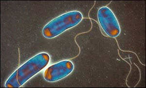 Legionella bacteria: courtesy of Science Photo Library