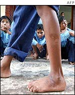 Mohammad Mamun, 10, shows his injured leg