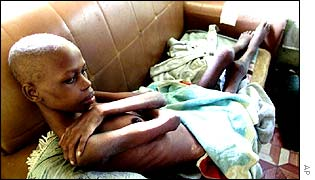 A child suffering from Aids in Africa