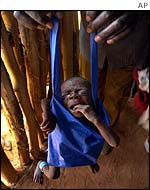 An undernourished 8-month-old Angolan baby being weighed
