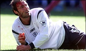 Paul Warhurst needs treatment for a cut before half-time