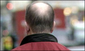Male pattern baldness could be helped, it is claimed