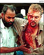 Man helped from Sheraton bomb attack