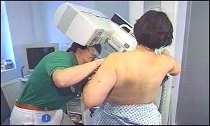 A woman undergoing breast screening