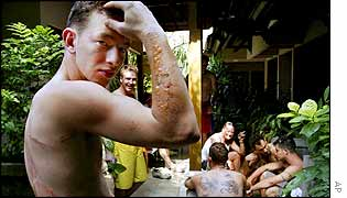 Australian football team member Adam Nimmo, 20, from Perth, Australia, shows the burns on his arm and back in Bali