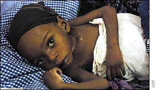 A starving Angolan child in a Luanda hospital