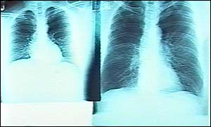 lung x-rays