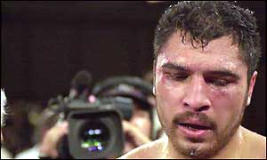 John Ruiz, the WBA heavyweight champion of the world
