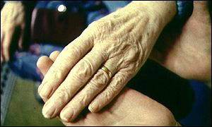 Hands affected by rheumatoid arthritis