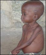 Malnourished child in Lira Starch factory camp