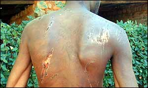 Torture victim in Zimbabwe