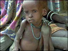 Panhien Garang, a one and half year-old-malnourished child sits at a feeding point in Pakot, southern Sudan