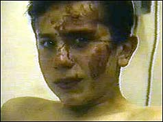 Injured young boy