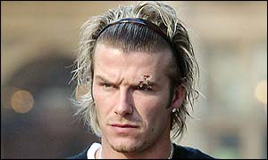 David Beckham's injury is clearly visible on Monday