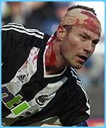 Alan Shearer had to go off with a cut head