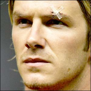 David Beckham wears a plaster over his cut eye in February 2003