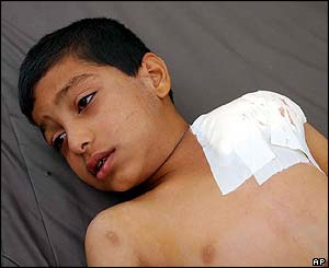 Wounded boy in Falluja hospital
