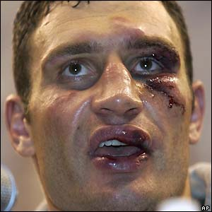 Klitschko in the after-fight press conference