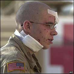 A US Army soldier belonging pauses after being treated for his injuries after an attack in the city of Tikrit, 2 August 2003