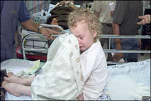 A wounded Israeli baby cries at a Jerusalem hospital
