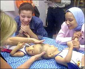 Physical therapist applying light pressure to the area where the Egyptian twins are conjoined