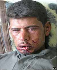 An injured Iraqi man