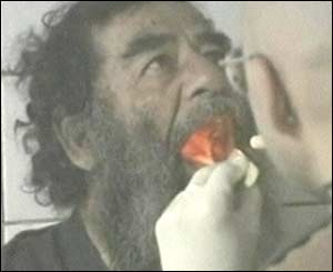 Saddam Hussein medical examination