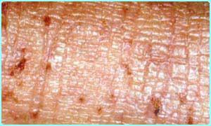 CBBC Newsround | ECZEMA | Types of eczema
