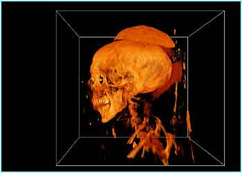 Mummies side-profile (picture credit - SGI Silicon Graphics)
