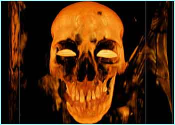 Mummies skull (picture credit - SGI Silicon Graphics)