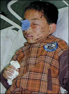 North Korean boy in hospital