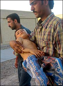 Iraqi civilian carries his injured child to hospital in Najaf