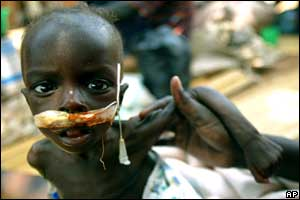 A malnourished boy with a feeding tube into his nose at a hospital in the northern Ugandan town of Gulu