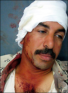 Injured Iraqi man