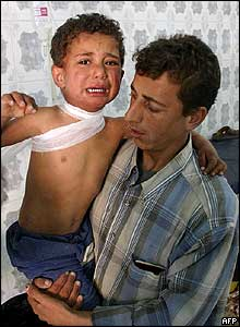 An Iraqi boy wounded in the blast