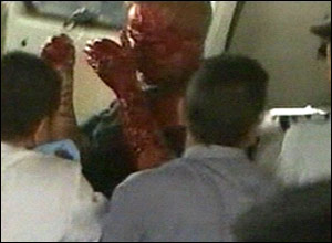 A man, covered with blood, is taken away by ambulance from the scene of the blast in Cairo.