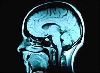 Brain scan: Picture Corbis
