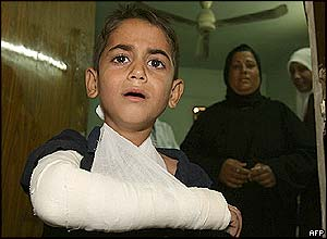 A boy cries from the pain of his injuries in a Baghdad hospital
