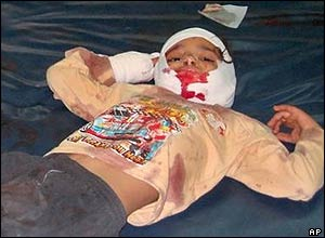 Nori Abdul Hussein, 4, lies on a hospital bed in Baghdad