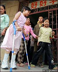 Qian Hongyan walks with her new limbs