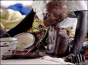 Starving child in Niger