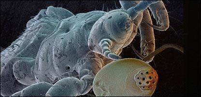 how to kill louse on head